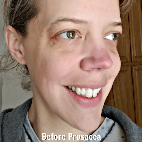 Red nose rosacea treatment